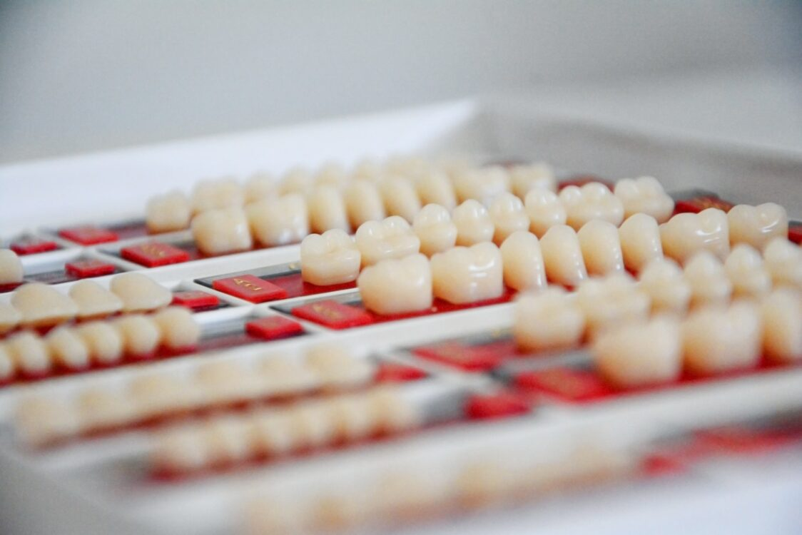 Is Composite Bonding A Good Option For My Teeth