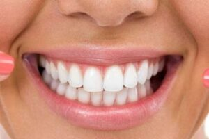 Six Month Smiles – Is It Right For You?